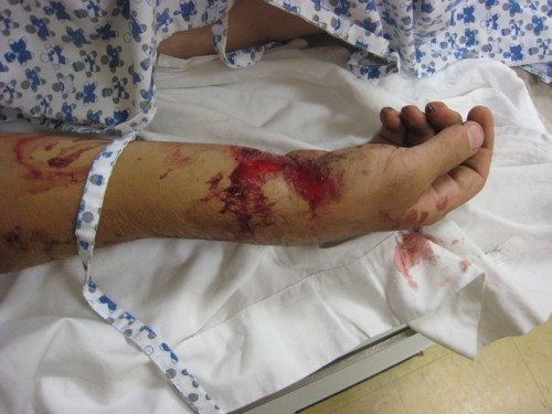 A patient's bloody broken arm in a hospital.