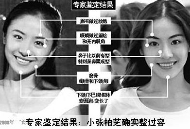 gong-mi-before-after-plastic-surgery-comparison