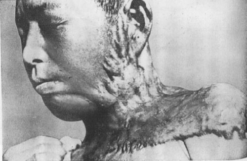 Japanese Atomic Bomb Victim Photos, Chinese Reactions