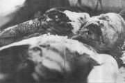 japanese-atomic-bomb-victims-34