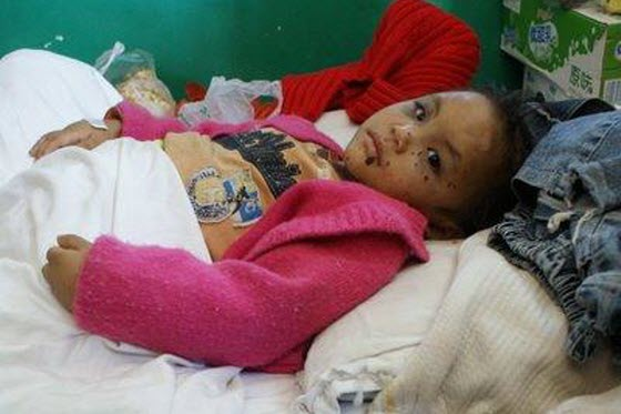 A 3-year-old Yunnan Chinese girl is in the hospital after suffering long-term child abuse living with her aunt while her parents were away working to make money.
