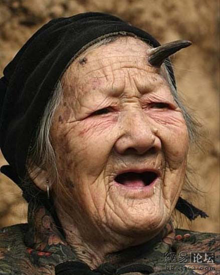 101-year-old Chinese granny Zhang Ruifang growing horns on her forehead!