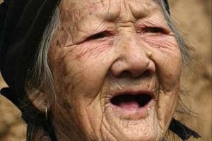 Old Chinese Woman from Henan province is growing horns!