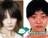 Kong Yansong before and after plastic surgery.