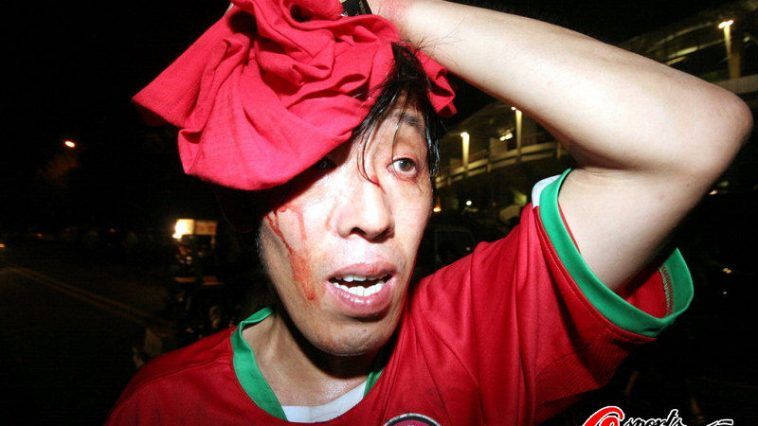 A Henan football fan with a head injury.