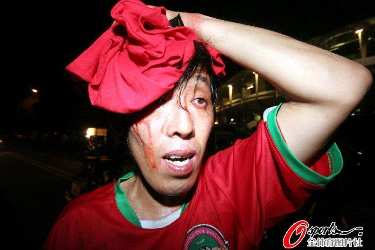 A Henan football fan with a head injury.