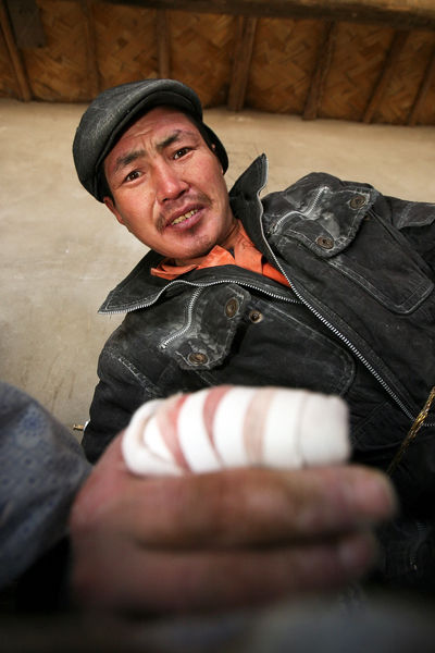 A worker for the Jiaershi factory in Western Xinjiang province shows his injured finger.