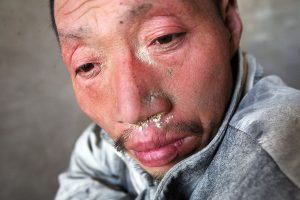 Lime powder remain on a Chinese factory worker's face.