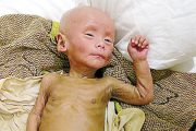 Little Ruirui, a Chinese baby boy in Zhejiang province who due to an immune system defect has developed multiple diseases and illnesses after receiving the BCG vaccine.