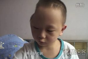 Little Zhongbao, a 4-year-old Chinese boy whose skull has been partially bashed in or dented by his stepmother.