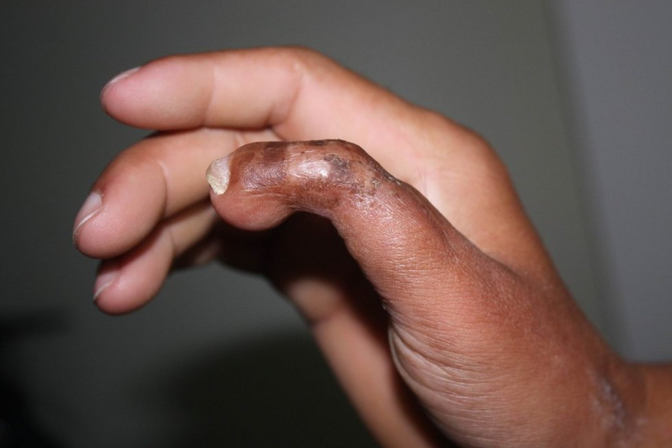 Finger sucking thumb toe