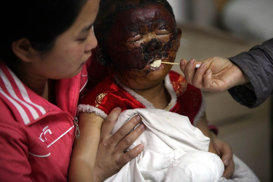 A 3-year-old Chinese girl with much of her face disfigured after her father poured gasoline on her and lit her on fire.
