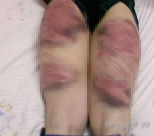 Students at a Henan martial arts school in China show their bruises and welts from being caned as corporal punishment.
