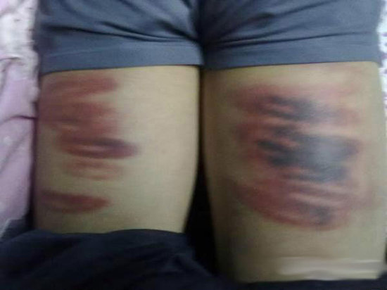 Chinese students of a Henan martial arts school show wounds from being physically disciplined for violations of school rules.