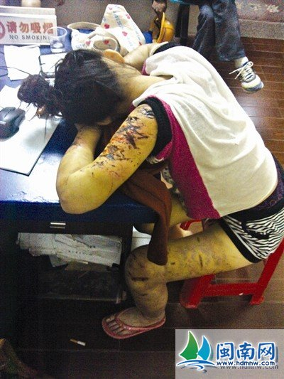 A 16-year-old Chinese girl in Fujian covered with cuts and bruises from over 1 month of abuse at the hands of her 29-year-old boyfriend. Here she rests bent over a desk at the local police station.