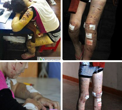 A 16-year-old Chinese girl in Fujian covered with cuts and bruises on her face, arms, legs, and back from over 1 month of abuse at the hands of her 29-year-old boyfriend.