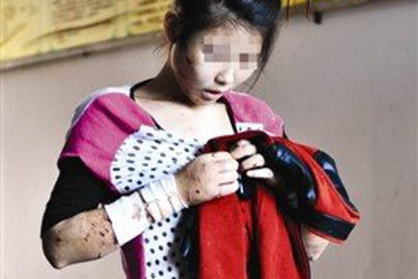 A 16-year-old Chinese girl in Fujian covered with cuts and bruises from over 1 month of abuse at the hands of her 29-year-old boyfriend.