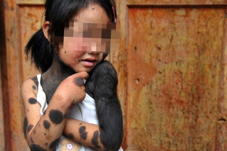 A 6-year-old Chinese girl in Guizhou, China has a rare skin condition where black spots and dark fur grow all over her body.