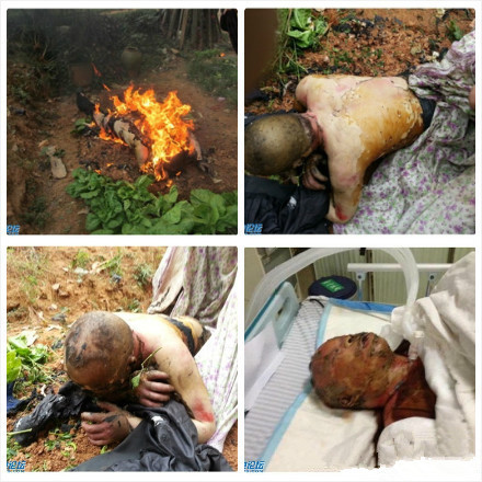 Photos of an elderly Chinese man set on fire in Hunan province of China over a demolition and relocation dispute.