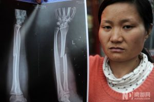 Jiang is holding an x-ray showing the bone fracture on her left arm.