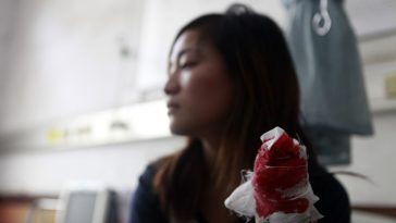 Zhou Ting's hand with her middle finger been cut off.