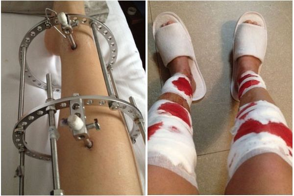 Bloody Pictures of Girl Who Had Bowed Legs Corrective Surgery.