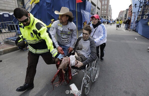 A man who has lost both his feet during the 2013 Boston Marathon terrorist bombings.