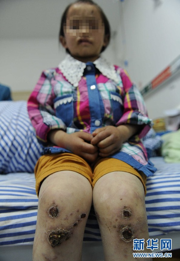 ... girl in China who has suffered abuse from her father for 5 years