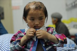 A little girl in China who has suffered abuse from her father for 5 years.