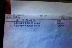A Chinese hospital's test results showing a 7-year-old boy testing positive for genital warts and HPV.