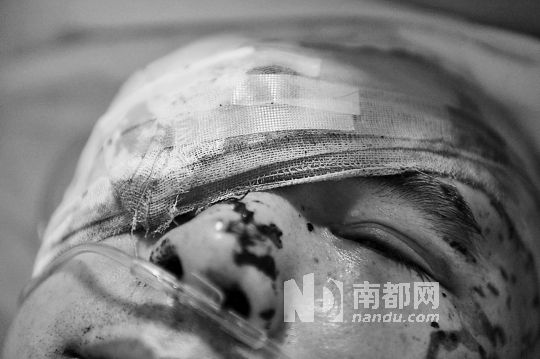 The injured Li Jianxin.