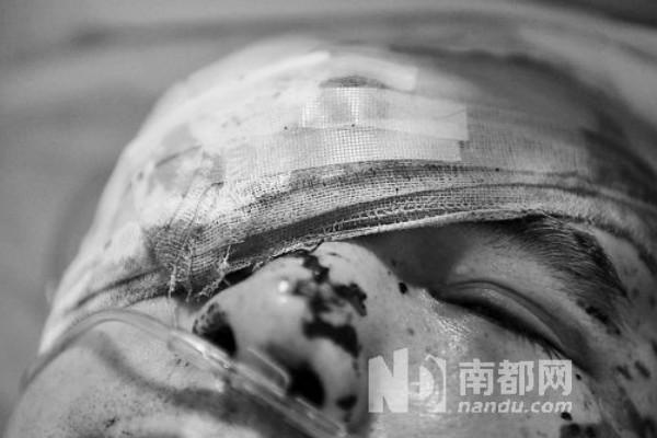 The injured Li Jianxin.