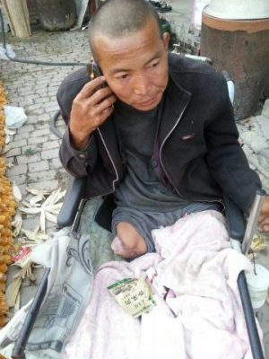 Zheng Yanliang, a rural Chinese man who sawed off his own leg due to a strange disease.