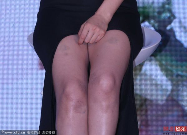 Gao Yuanyuan's bruised thighs.