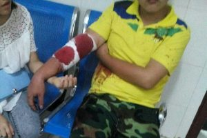 A Chinese high school student with bloody bandages from an injury sustained during a brawl between students and military instructors at a Hunan high school.