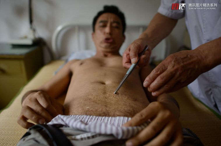 Chinese man gets bee sting as a health care treatment.