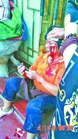 A middle-aged woman in Gulangyu, Xiamen with a bloody wound on her head after being hit by a brick by an tourist angry that she had cut in line for the restroom.
