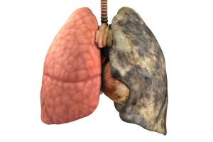 "Illustration of a healthy ""normal"" lung next to a blackened diseased ""smoker's"" lung."