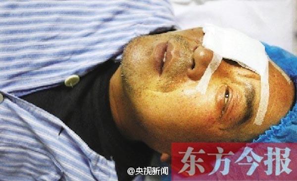 sanitation-worker-eye-injury